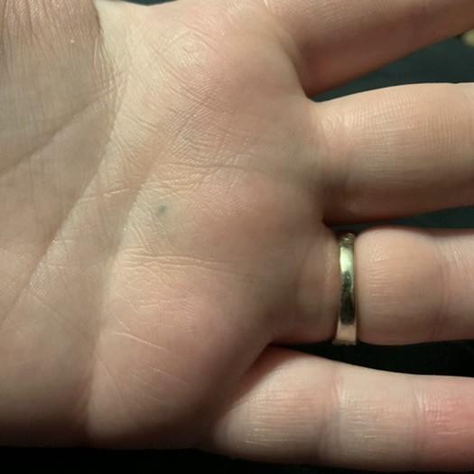травма карандашом, случайная татуировка, татуировки точки