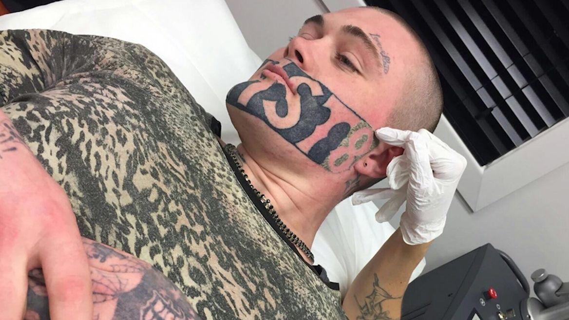 DEVAST8, Марк Кропп, татуировка на лице
