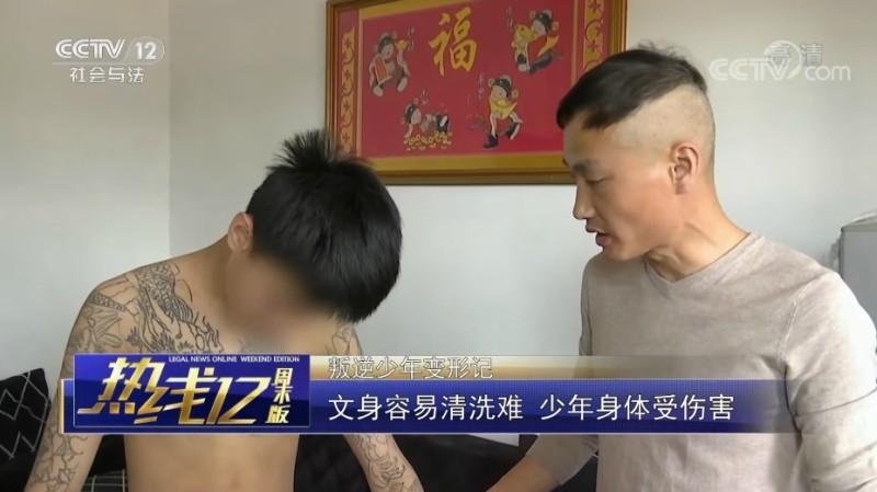 китайская татуировка, судебный иск, китайский подросток, сведение татуировок, цзяншань, чжэцзян, родители, qianjiang evening news