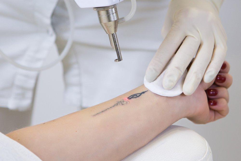 удаление татуировки лазером, выведение татуировок, избавиться от татуировки, тату-бизнес в германии, законы германии, положение о радиационной защите, косметологический бизнес, косметологический лазер