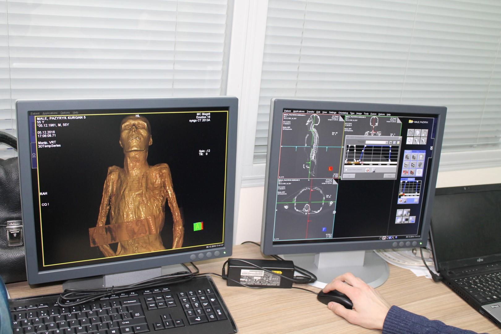 мумия, эрмитаж, томограф