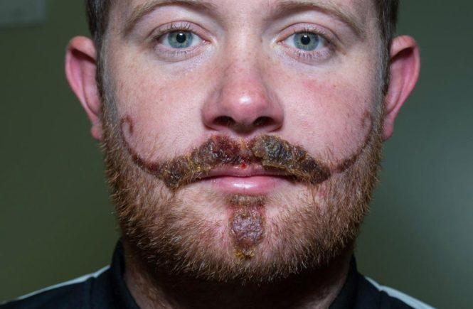 черная хна, аллергия, бенидорм, усы, борода, временные татуировки