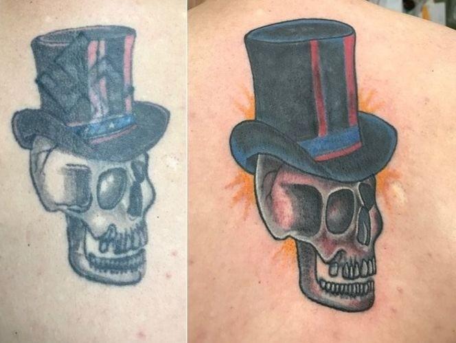 тюремные татуировки, сведение татуировок, удаление татуировки лазером, кавер-ап, благотворительность