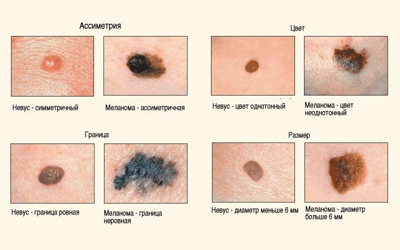 меланома, рак кожи, невус, родинка