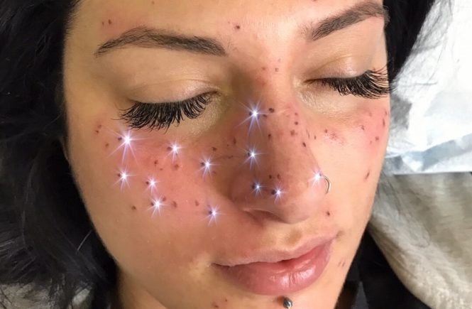 astrofrecks, freckling, астрология, созвездия, веснушки, татуировки на лице, татуировки со смыслом, фреклинг