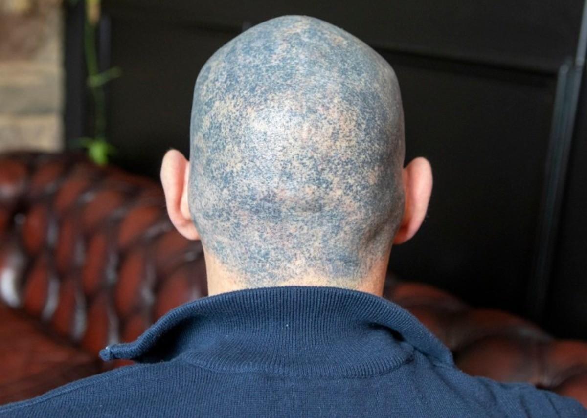 микропигментация, татуировка на голове, выпадение краски, тату прическа, больной раком, химиотерапия, депрессия