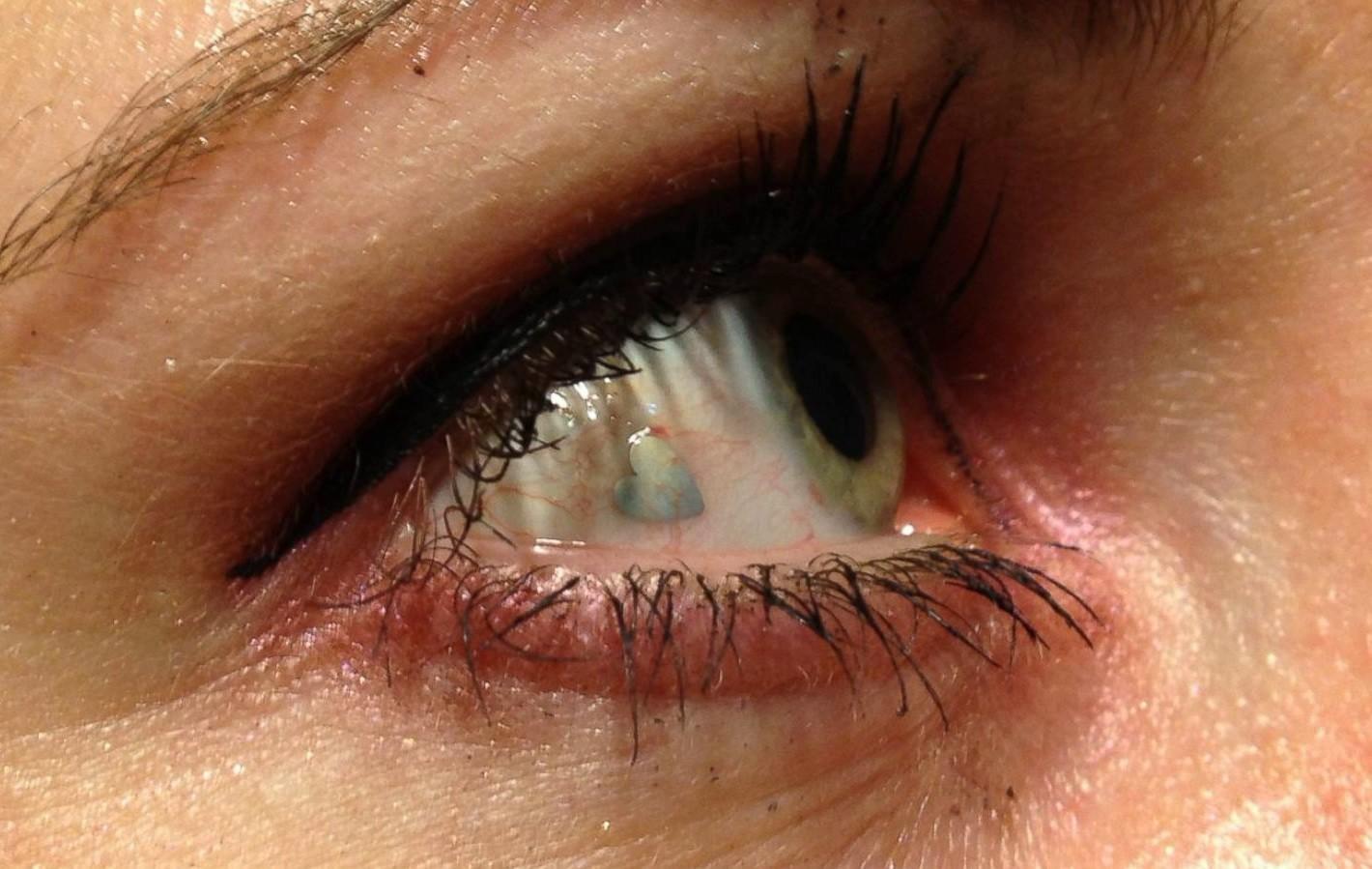 Пирсинг Глаза (платиновый имплант в форме сердца)