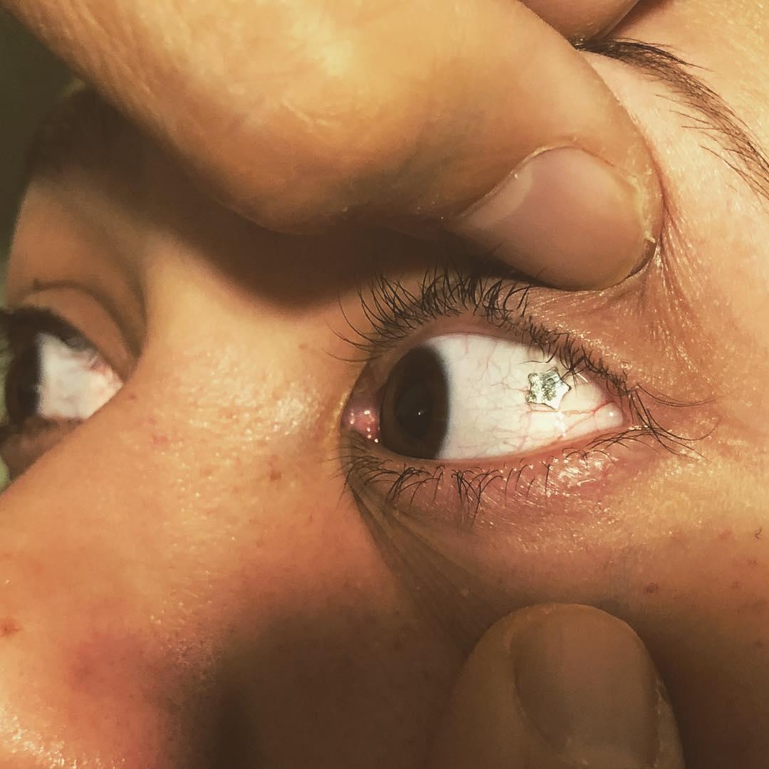 Пирсинг Глаза (платиновый имплант в форме звезды)