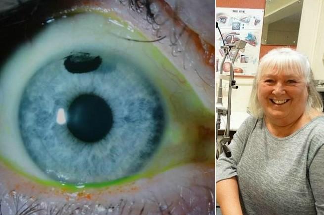 медицинские татуировки на глазах, уменьшающие чувствительность глаза